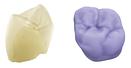 customised prosthesis9